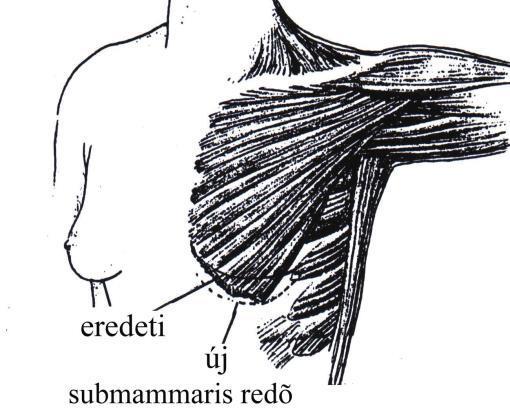 castrato-erekció