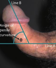 az erekció során a péniszen lévő bőr megreped