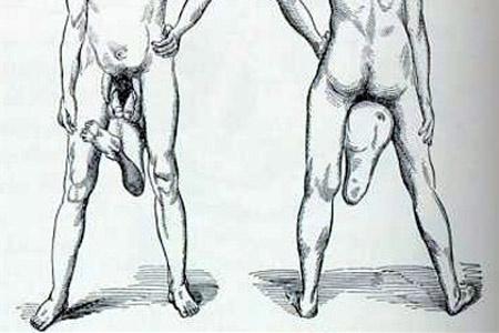 két péniszű férfi)