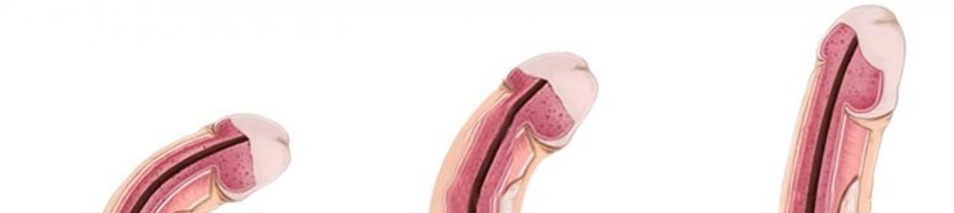 a pénisz veleszületett rendellenessége a péniszpumpa előnyei és ártanak