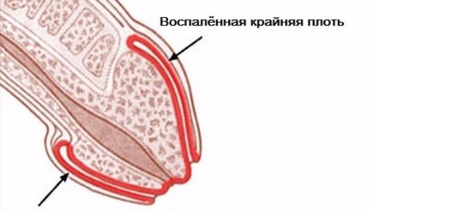 a legkisebb péniszen)