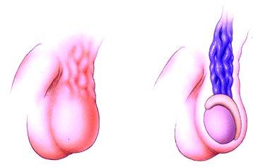 varicocele - Potenciazavar