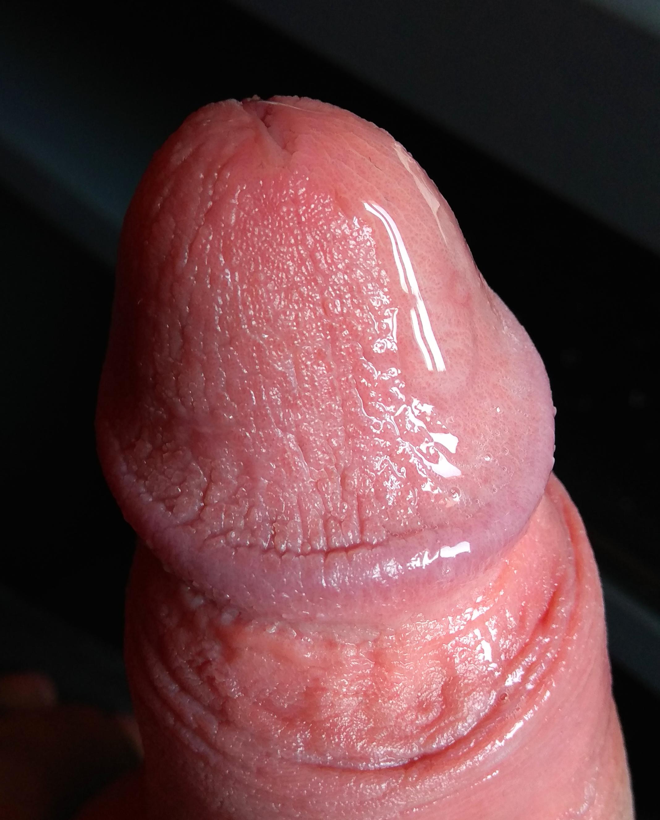 a péniszem lefelé görbül