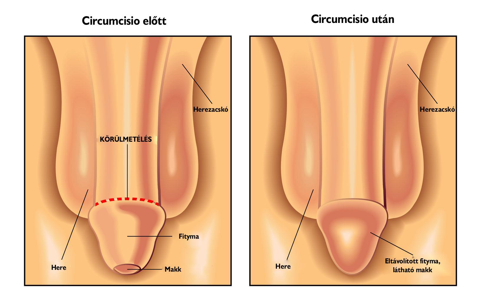 a pénisz veleszületett rendellenessége)