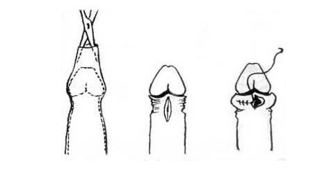 erekció körülmetélési öltések után