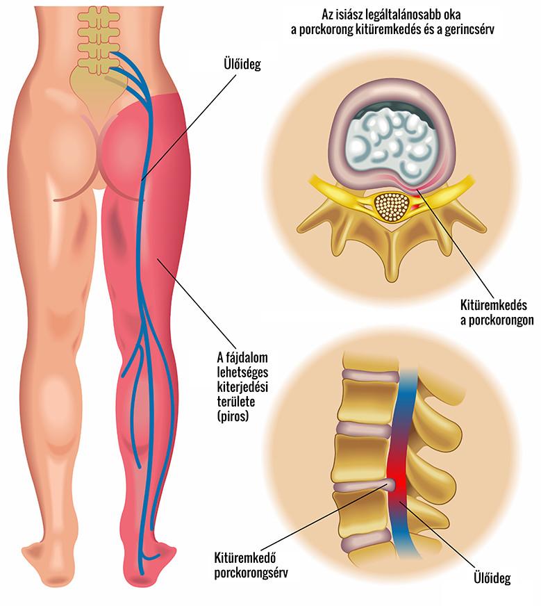 a gerinc hatása az erekcióra)