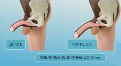fekvő pénisz hossza)
