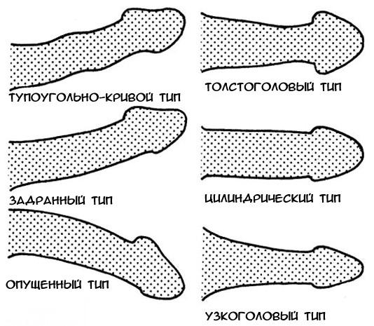 szokatlan alakú pénisz
