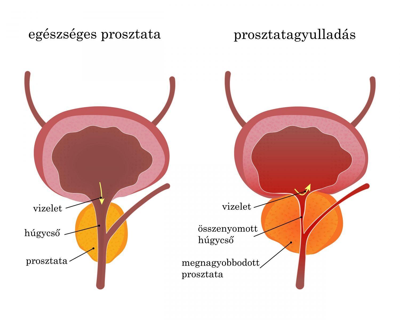 erekció a prosztatagyulladás során)