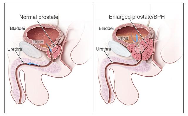 az erekció helyreállítása a prosztata műtét után