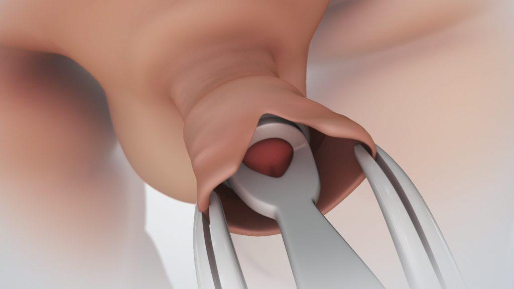 pénisz körülmetélés után erekciós állapotban