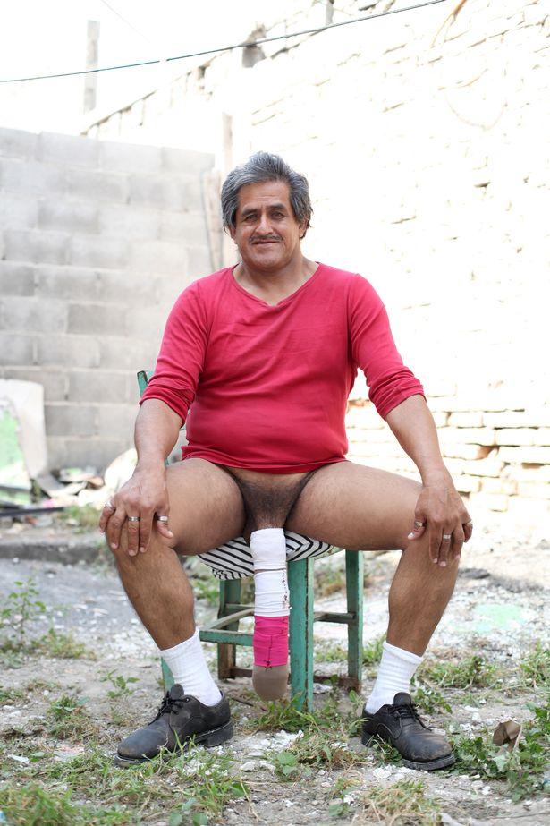 törpék péniszei