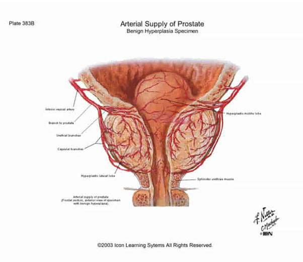 erekció prosztatagyulladás után