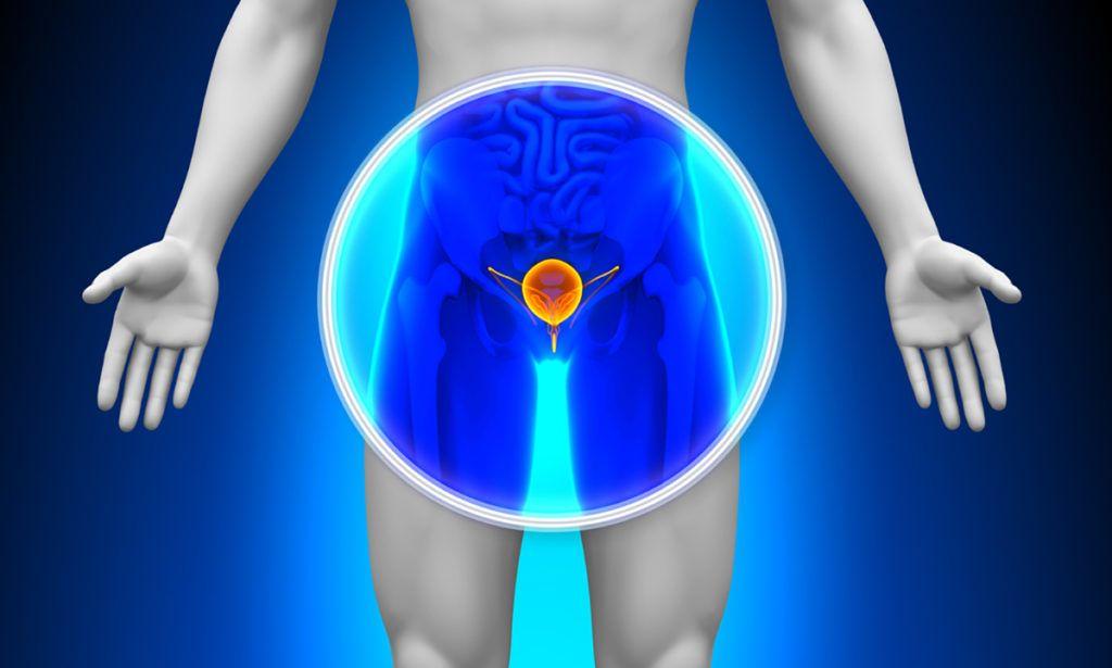 krónikus prosztatagyulladás és gyenge merevedés