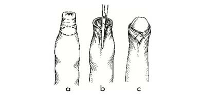mit kell tenni egy hajlított pénisz)
