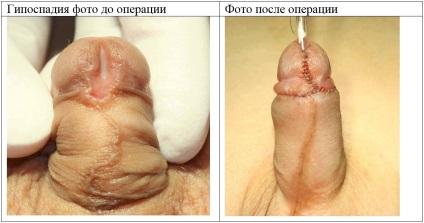 pénisz koronális sulcus