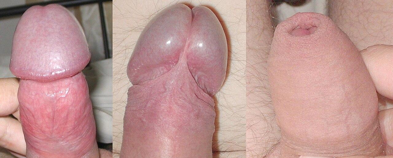 körülmetélt pénisz