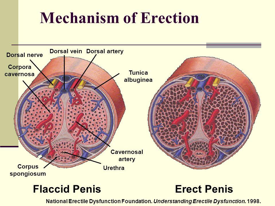 erekció menü