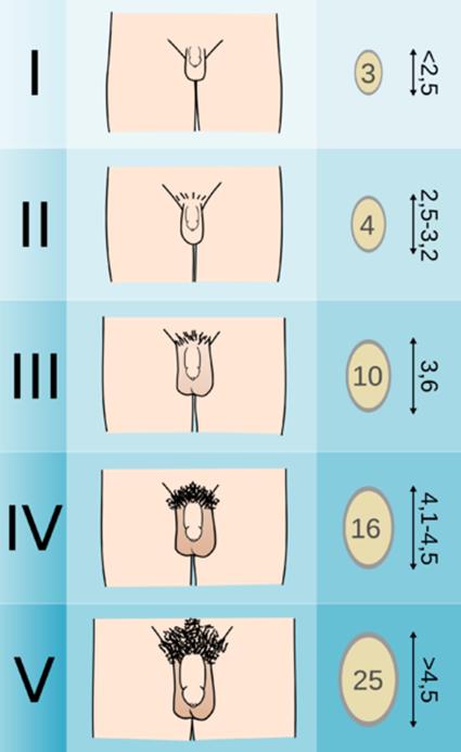 különbségek a férfi hímvesszők között