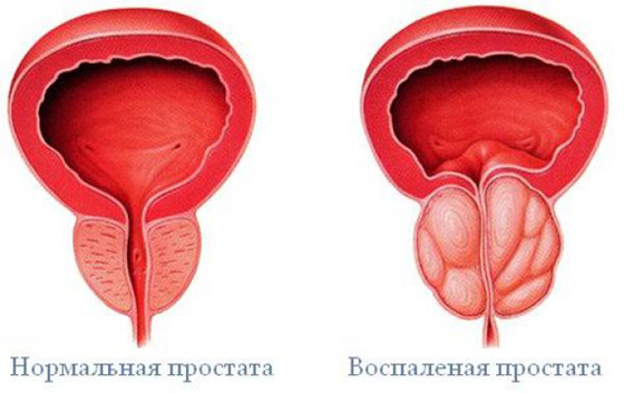 befolyásolja a prosztatagyulladást az erekció során
