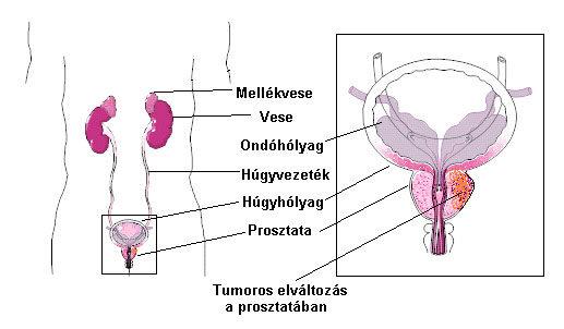 prosztatagyulladás merevedési problémája)