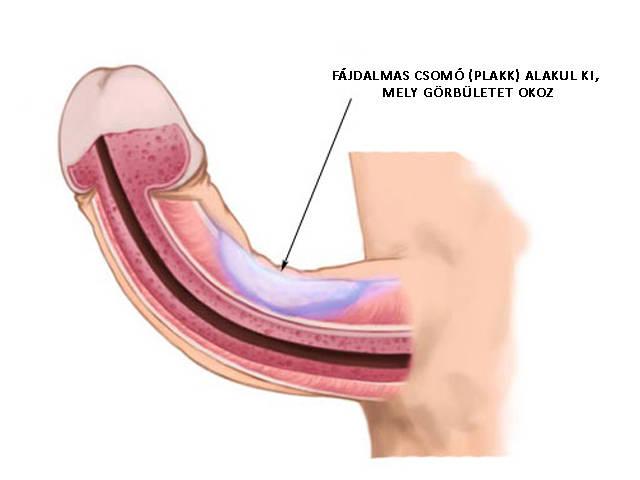 a pénisz veleszületett görbülete