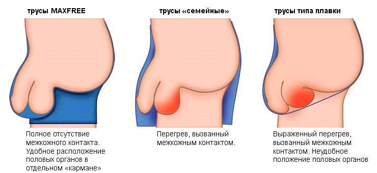 hogyan lehet eltávolítani a lepedéket a péniszről