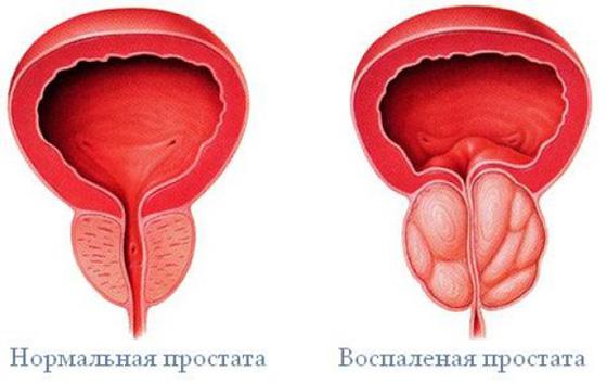 Akut prosztatagyulladás és szex, miért nincs erekció?